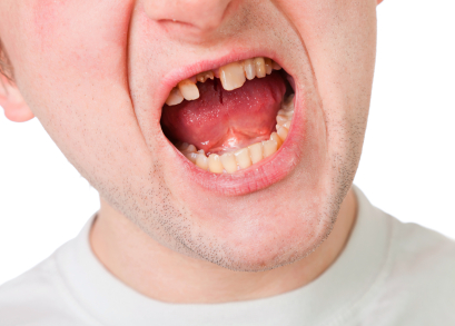 Broken Tooth Settlements and Verdicts in Florida Accidents