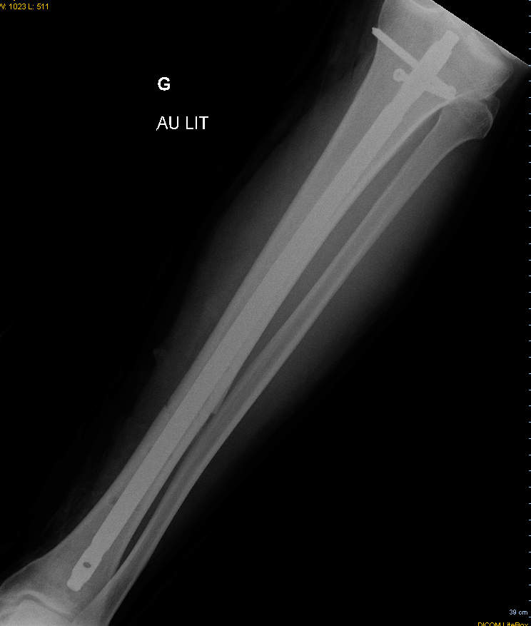 X-ray after the external fixator was removed from leg. Rod and screws remain.