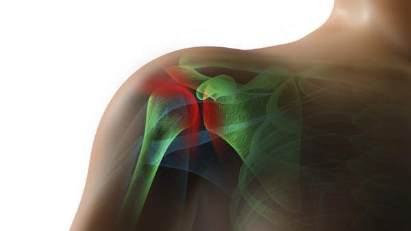 Inside of Shoulder (Rotator cuff injury, subacromial bursitis, glenoid labral tears) inflamation