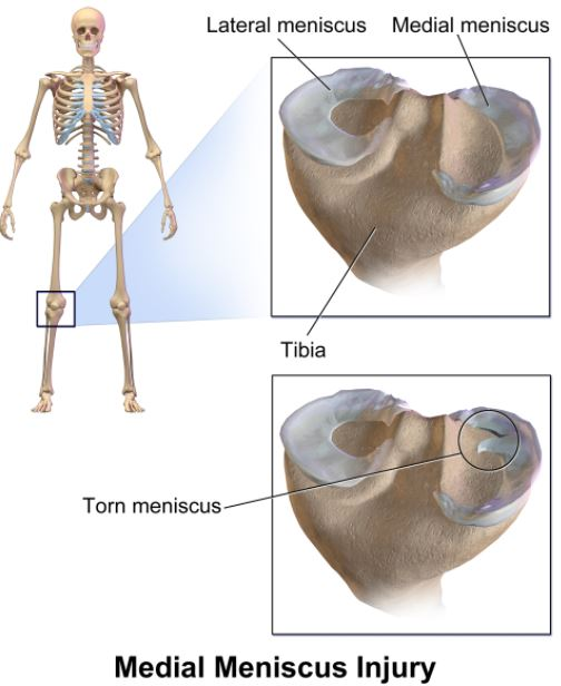 torn mensicus - medial meniscus injury