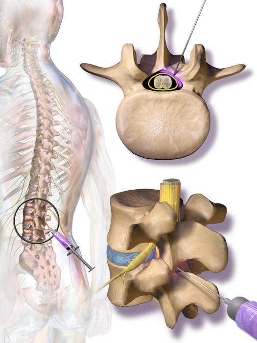 Epidural steroid injection.