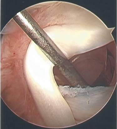Picture taken of inside of shoulder during rotator cuff surgery.