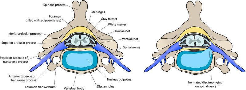 Herniated disc impinging on spinal nerve Anterior cervical discectomy and fusion