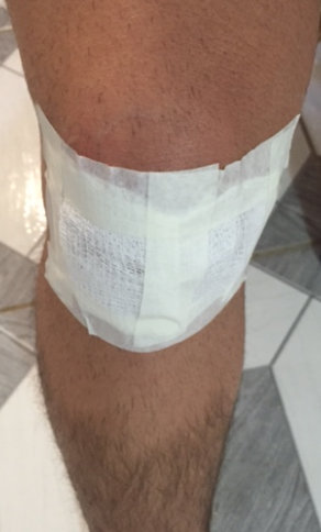 Bandage on knee after surgery.