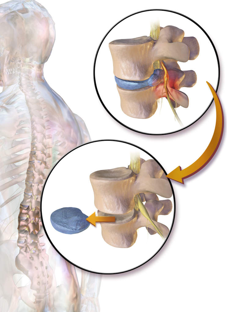 Lumbar (Lower Back) Discectomy Surgery
