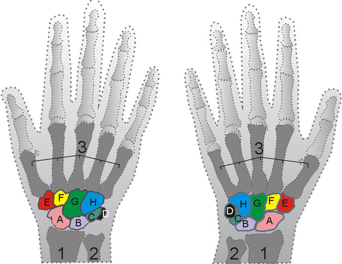 Shown is the right hand, palm down (left) and palm up (right). A=Scaphoid, B=Lunate