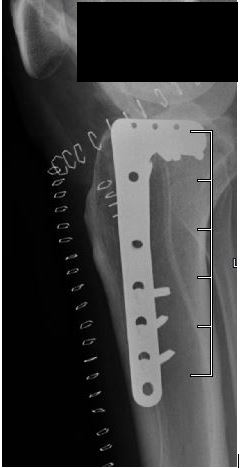 tibial plateau fracture with screws and plate