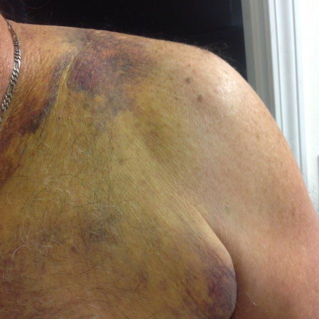 bruising to his collarbone area