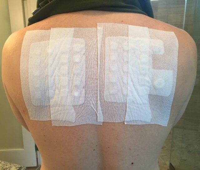 allergy patch test on back