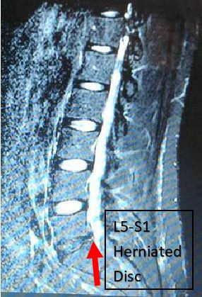 Arrow pointing at herniated disc at L5-S1