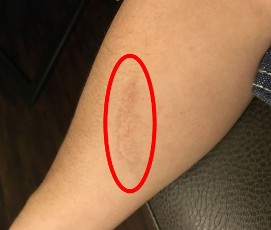 red circle around scar on forearm