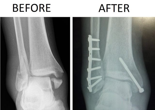 640px-Trimalleolar_Ankle_Fracture_Xray_shown_before_surgery_and_after_surgery