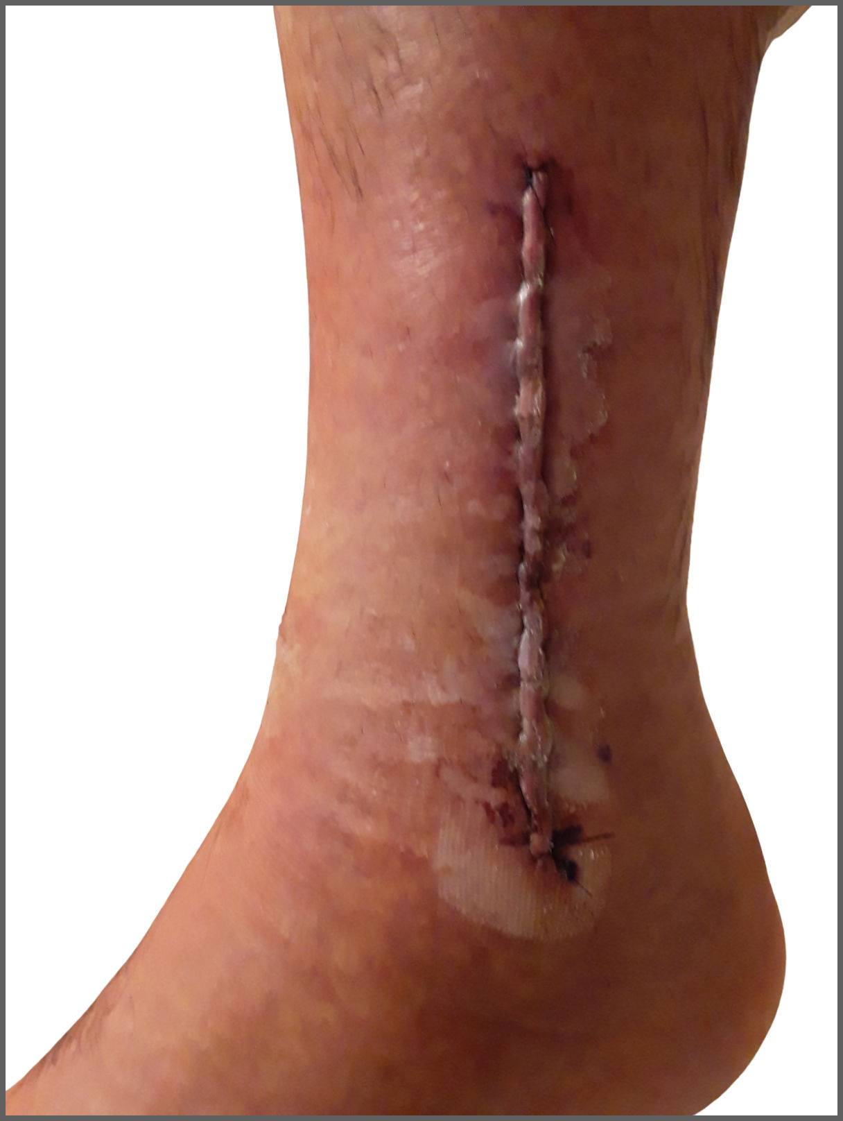 raised incision after surgery to tibia and fibula