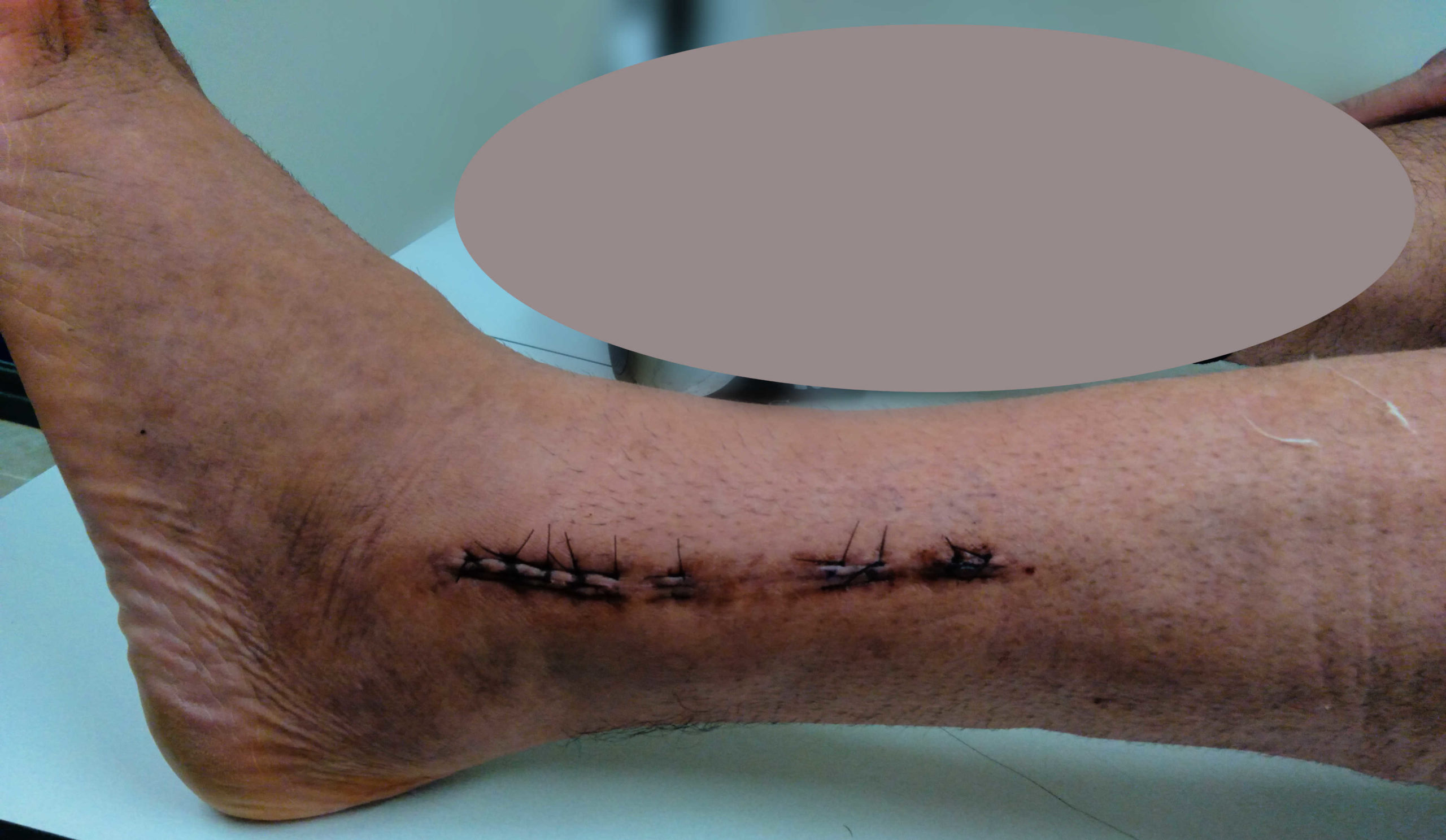 stitches and incision to leg after surgery to tibia and fibula
