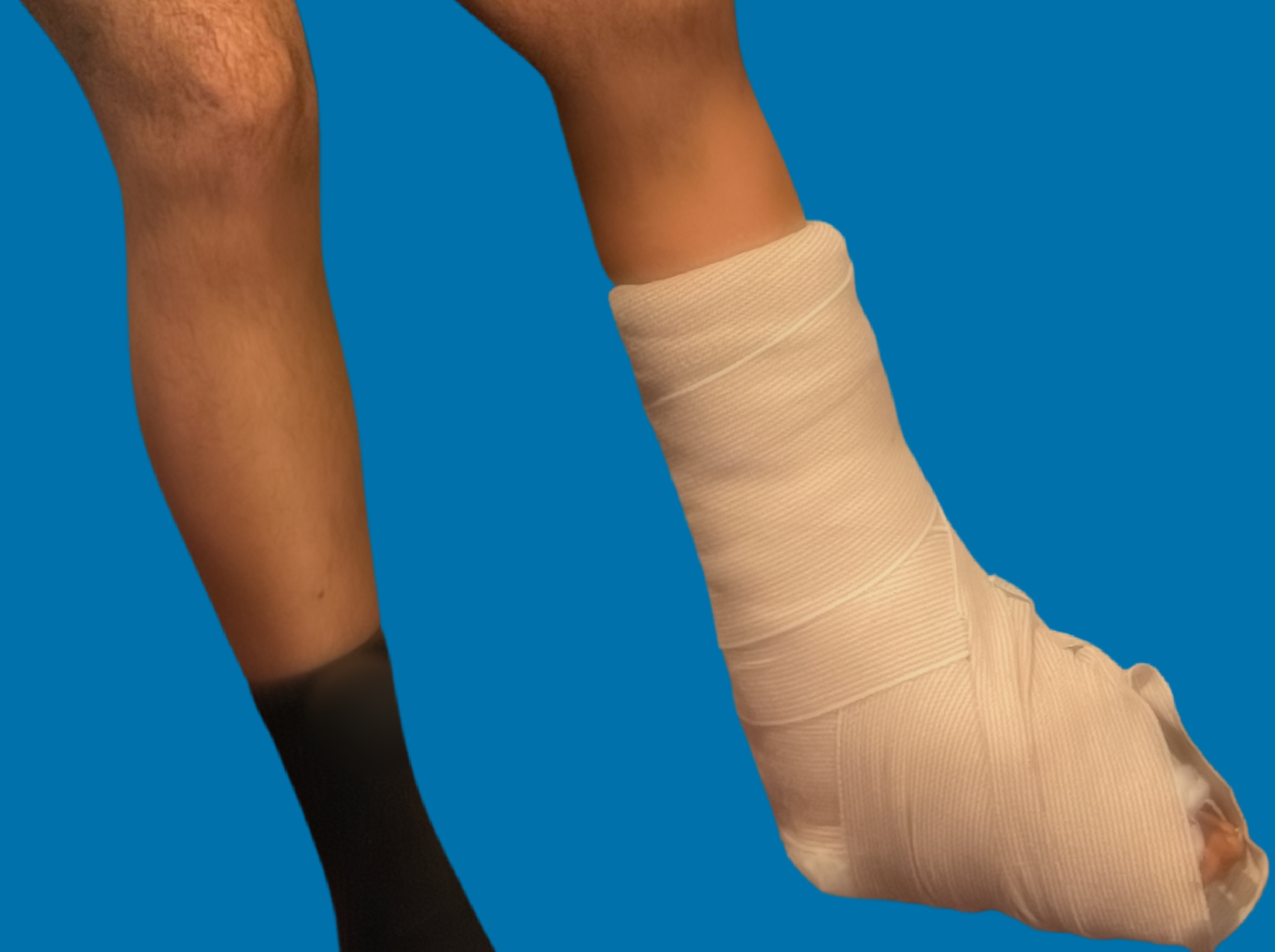 cast on leg